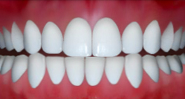 Dental Midlines not Matched