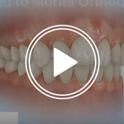 Morita Orthodontics