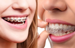 Side by side photos of braces and invisalign in mouths of patients.