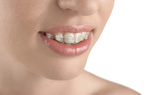 Which Type of Braces Is Best for Me?